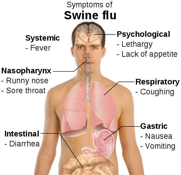 symptomsswineflu